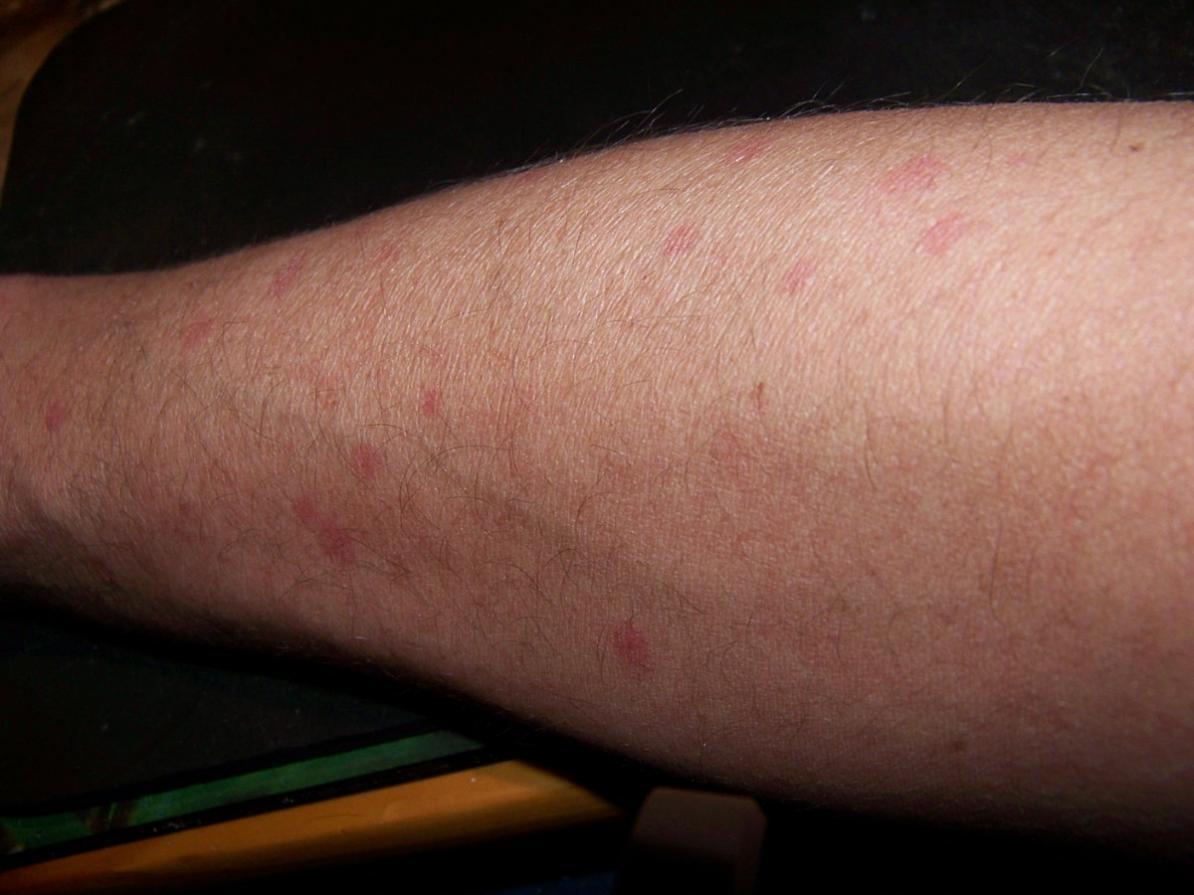 Was Sind Das Für Stechende Mücken